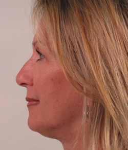 Click to View Nose Surgery Gallery