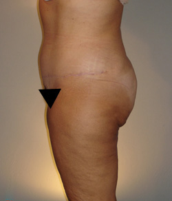 Tummy Tuck After - Ft. Myers FL